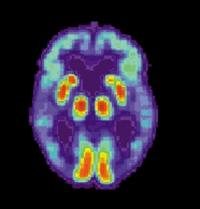 En el cerebro de los enfermos de Alzheimer los niveles de aluminio son elevados